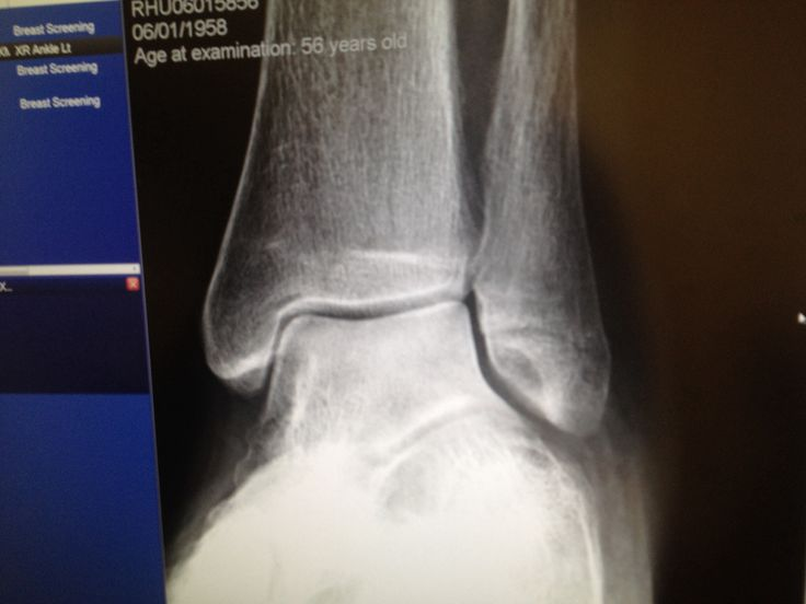 17 Best Images About Broken Ankle On Pinterest Different