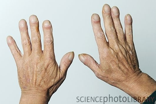 Genetic Disorders: Clubbed fingers, a symptom of Cystic Fibrosis. I have clubbed fingers, but not this bad. I hate my fingers, I've never had my nails done before....