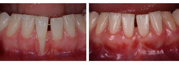 La recesión de la #encía puede darse a cualquier edad como consecuencia de una #periodontitis, de una higiene dental agresiva, del uso de piercings en los labios y de tratamientos de #ortodoncia en personas con encías muy finas. Hoy compartimos el caso de una paciente de 23 años que acude a nuestra clínica dental para recuperar la #encía perdida.