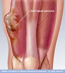 Flexibility - Soft tissue, soft tissue includes muscle, connective tissue & skin. Each of these provide resistance to movements and affects flexibility. Stretching lengths connective tissue, muscle and tendon length which will all increase the range of motion and the joint and therefore the flexibility of a joint.