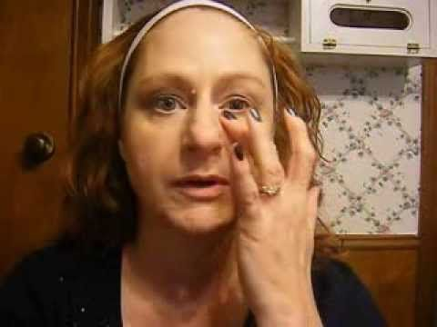 Botox - day one of treatment for Synkinesis/ Bell's Palsy