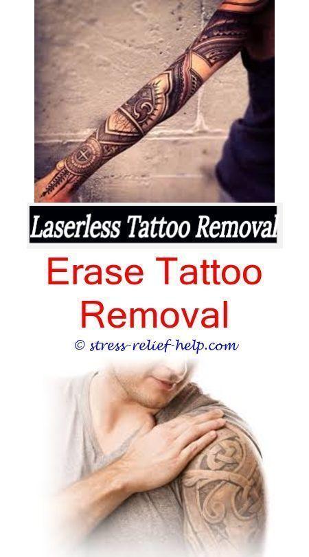 laser tattoo removal rejuvi tattoo remover - tattoo removal ...