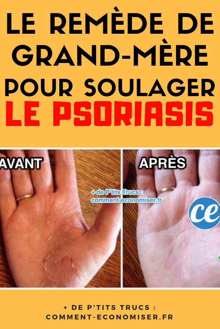 Soriform (Psoriasis krém) in   Psoriasis cream, Psoriasis, Eczema cream
