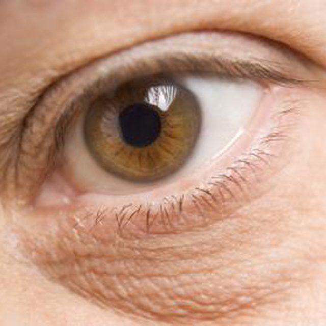 How do I Treat an Eye Swollen by a Bug Bite?