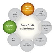 Rapidly developing Bone Graft Substitute Market to attain impressive Growth USD 5,031.0 Million, At CAGR of 6.52% by 2027