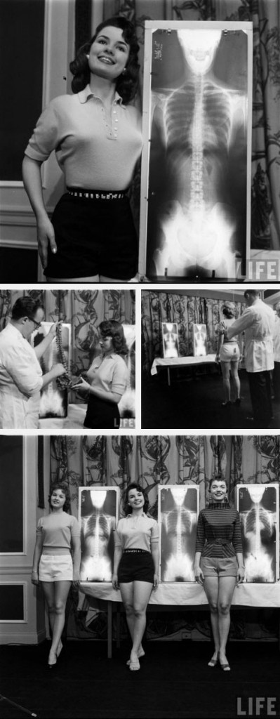 Chiropractic beauty contest, featured in LIFE magazine. Why don't we still have these? haha