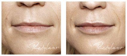 før og etter Restylane LIP behandling