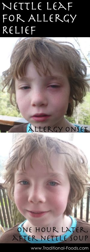 Nettle for Allergies at Traditional-Foods.com ... think I need to try this with my boy.