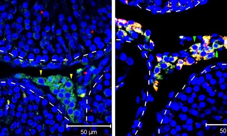A stem cell strategy for boosting testosterone levels tested in rodents  # # Check more at https://scifeeds.com/news/a-stem-cell-strategy-for-boosting-testosterone-levels-tested-in-rodents/