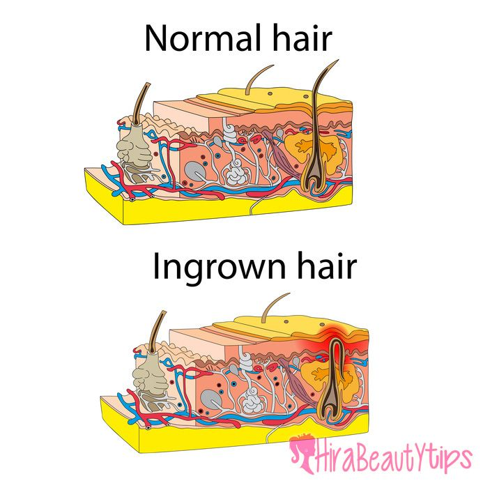 How to get rid of ingrown hair on face