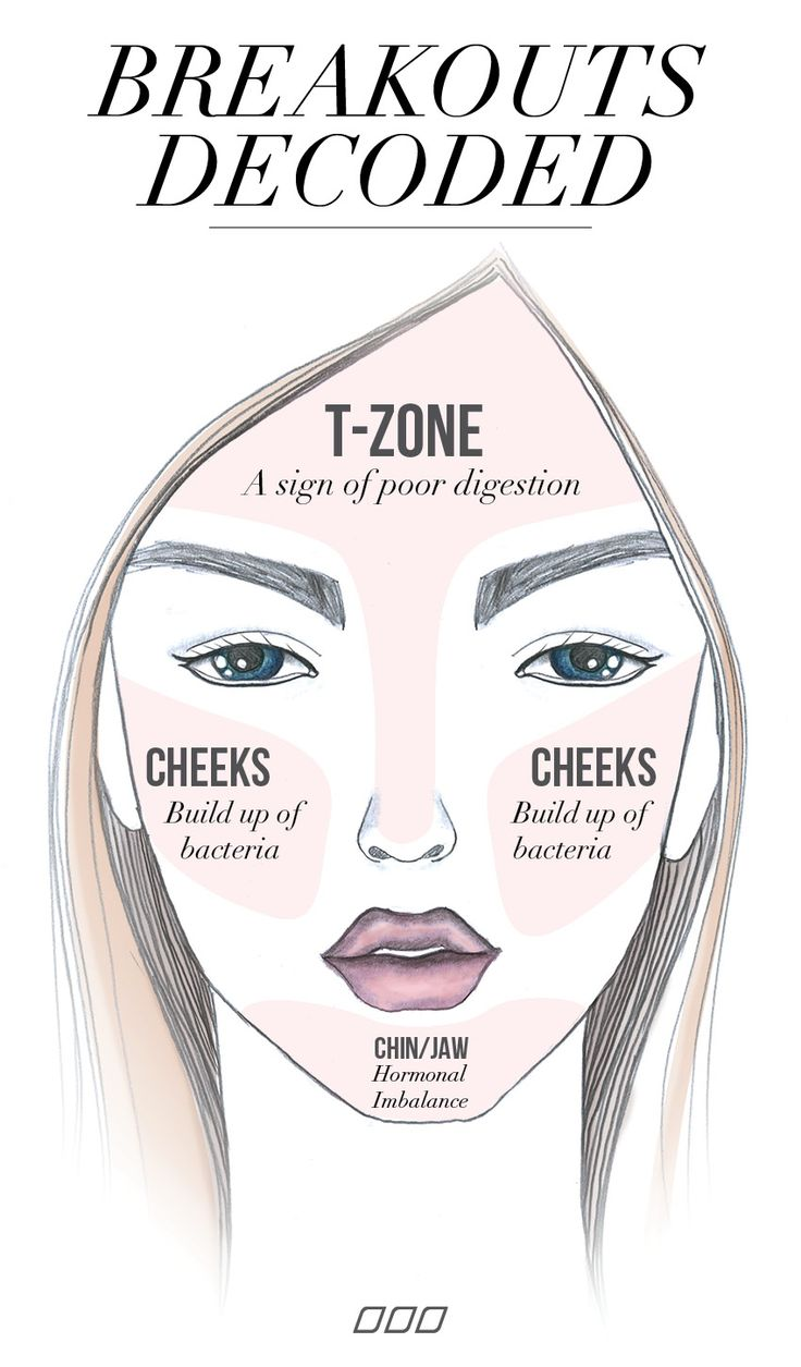 Did you know there's a reason behind your breakouts? Head to MNB for the 411.