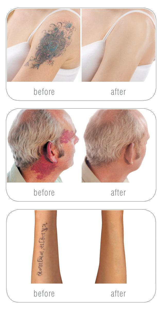 Cover up tattoos, scars & birthmarks