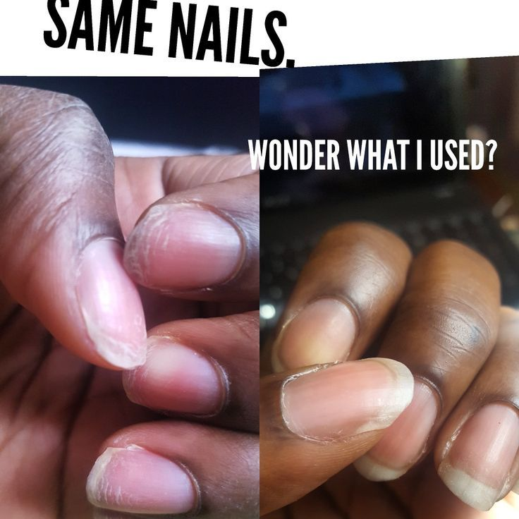 Treating Ridged Acrylic Damaged Nails In Just A Week! With