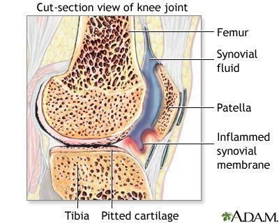 How Rheumatoid Arthritis Affects Each Part of the Body: Rheumatoid Arthritis - Knee Joint