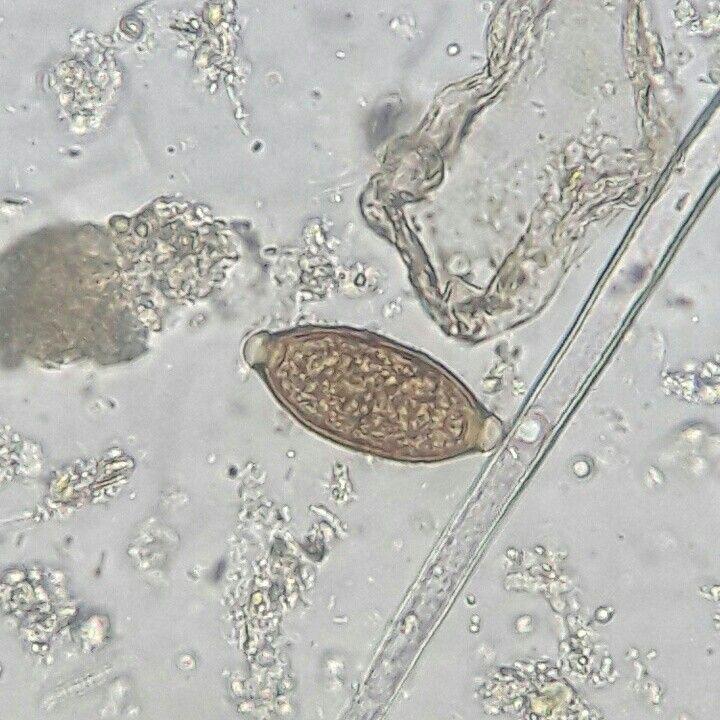 Huevo de Trichuris trichiura observado en solución salina a 40X.