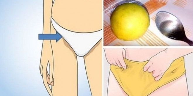 Elimina esas molestas manchas que aparecen en la piel del pubis, al rasurarse.... No te preocupes la naturaleza tiene la solución perfecta para ti!!!