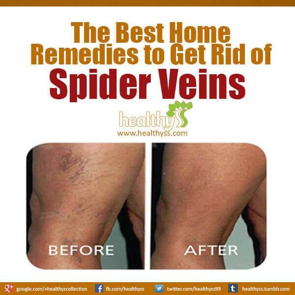 The Best Home Remedies to Get Rid of #Spider #Veins