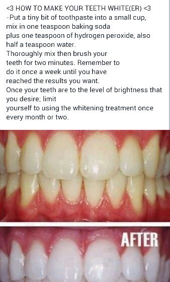 Whiten teeth at home. I just tried it! I hope it works!