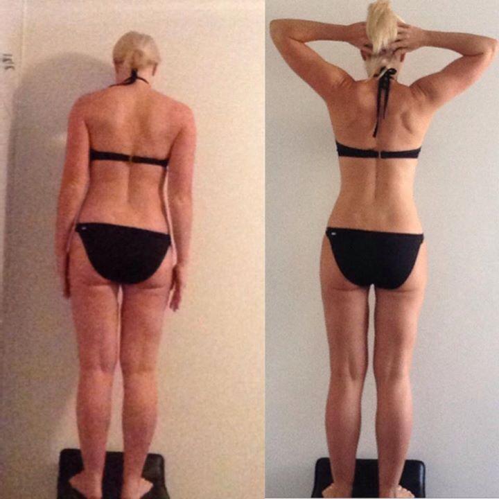 Fat Cellulite Ass 5