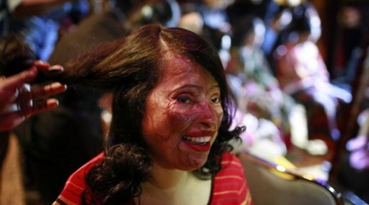 Στην πασαρέλα γυναίκες-θύματα επιθέσεων με οξύ (Φωτογραφίες)