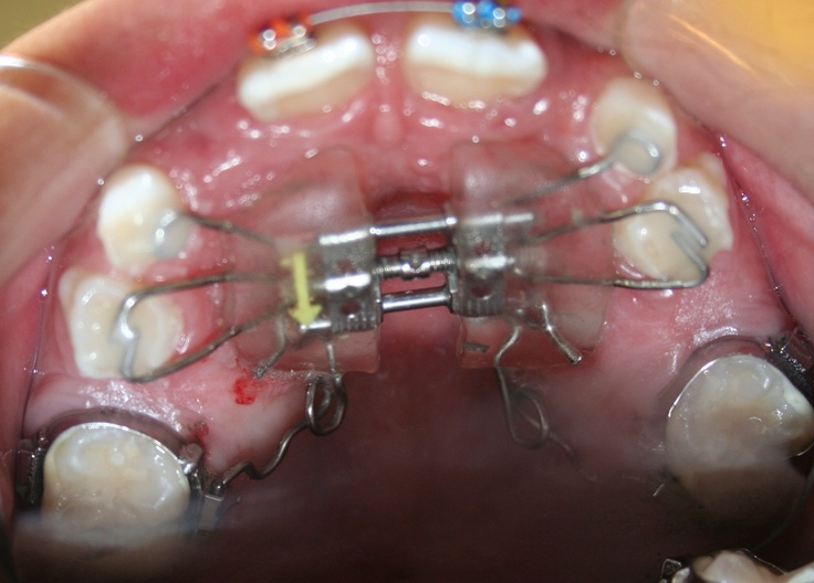 Orthodontic Appliance - Expander
