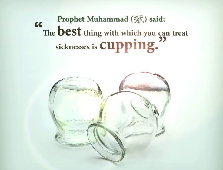 "Ibn Umar reported that the Messenger of Allah (PBUH) said, ""Hijama Cupping on an empty stomach is best. It increases the intellect and improves the memory. It improves the memory of the one memorizing"" (Reference: Saheeh Sunan ibn Maajah, 3488).  Learn more about this amazing Sunnah and its benefits."