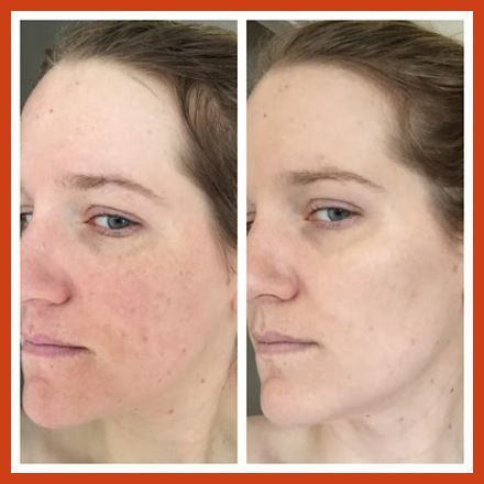 Acne Scar Removal - Acne Scar Removal Surgery May Not Be A Good Alternative -- Click on the image for additional details. #BestMakeupToCoverAcneScars #AcneScarsTreatment