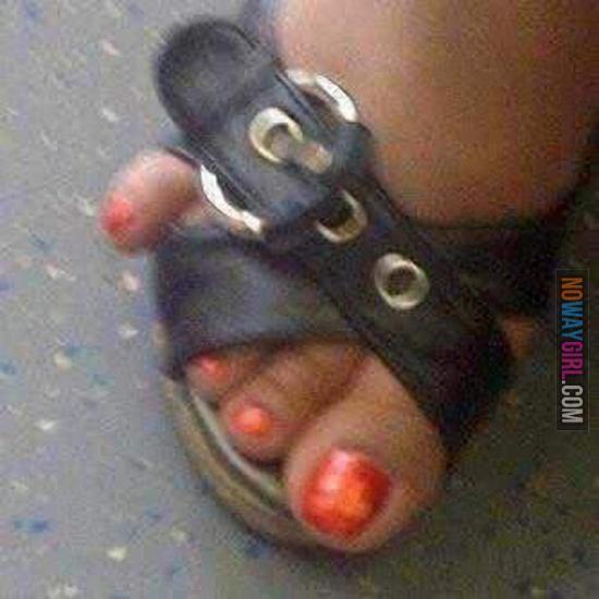 Black Pinky Toenail Shoe
