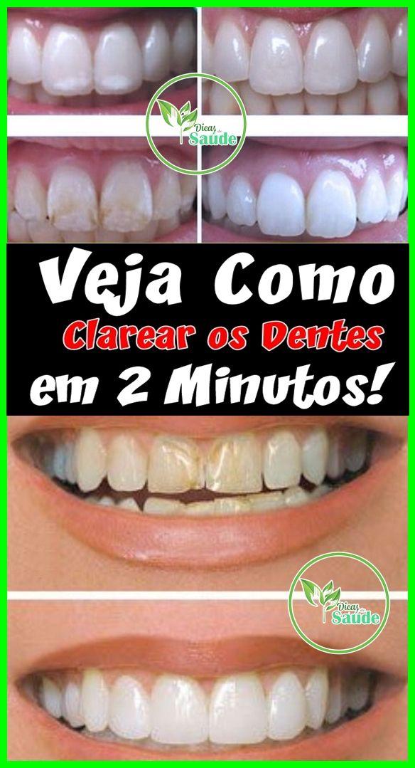 Incrivel Truque Caseiro Para Clarear Os Dentes Em 2 Minutos