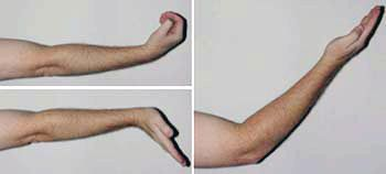 Ulnar Nerve Entrapment at the Elbow (Cubital Tunnel Syndrome)-OrthoInfo - AAOS ~Exercises~