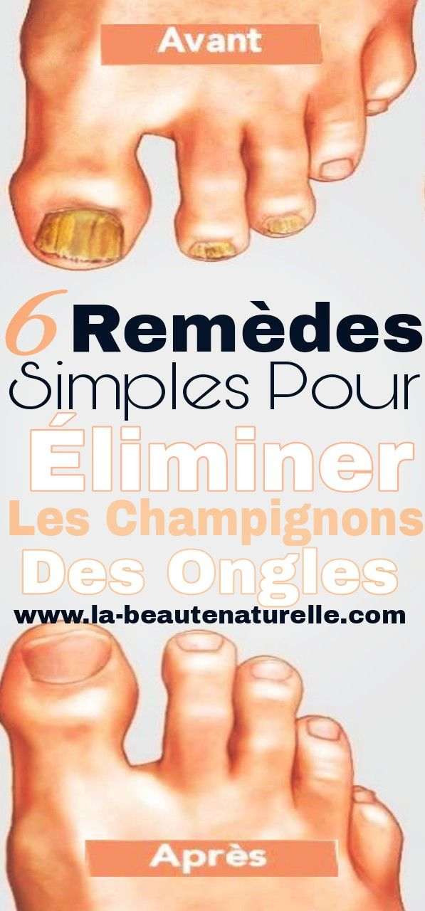 1545 best sante images on Pinterest Aleppo, Banting diet and Beleza