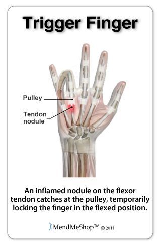 """Trigger finger and trigger thumb are painful conditions that cause the fingers or thumb to catch or """"lock"""" most often in a bent position. Yeah me!"""