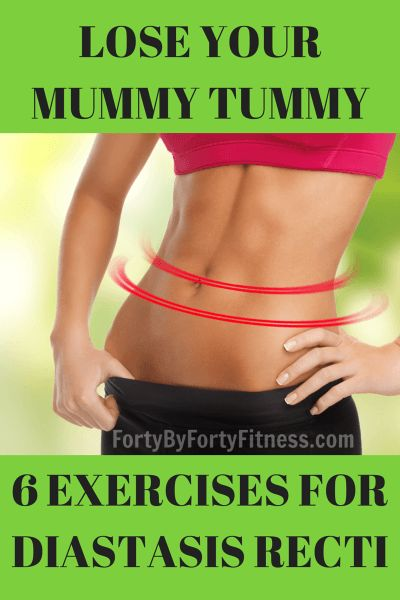 Lose your mummy tummy - 6 exercises to help correct Diastasis Recti - Forty by Forty Fitness