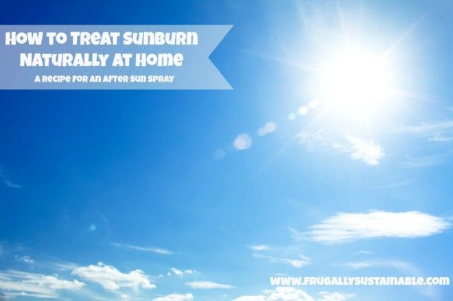 How to Treat Sunburn Naturally at Home: A Recipe for an After Sun Spray