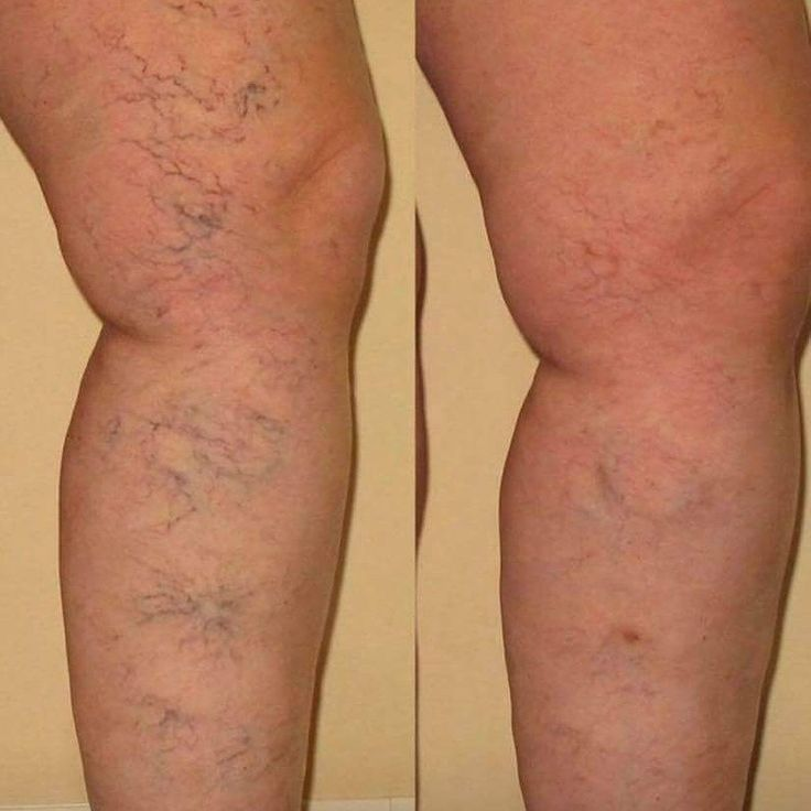 Who would like to try a product that can do this? Available in NZ 7 April 😘