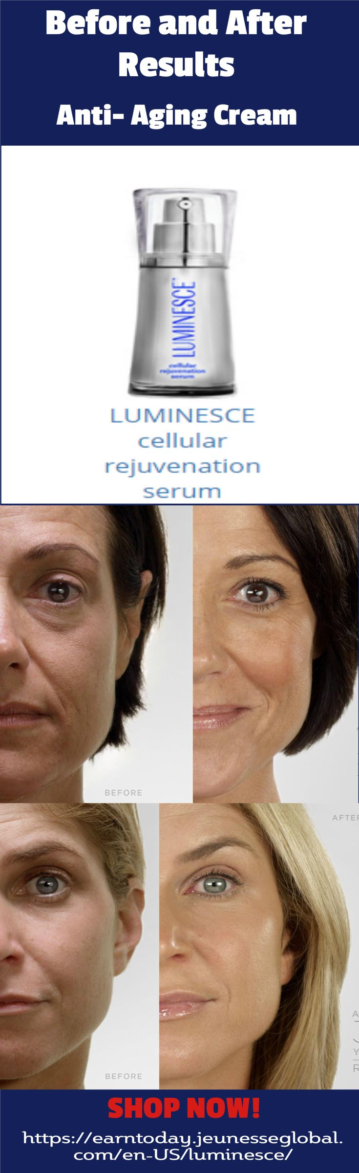 #Luminesce Before and After Results. 30 days money back guarantee.  #antiaging #skincare  http://earntoday.jeunesseglobal.com/en-US/luminesce/LUMINESCE