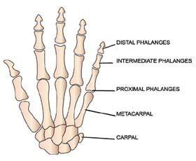 Stages of Rheumatoid Arthritis Infographic poster