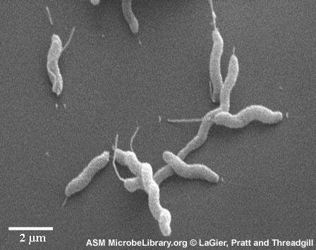 Fisiología y metabolismo: Bacilos gram negativos, de crecimiento lento, son termofilos (42-43°C), no esporoformadores, microaerofilicos y capnofilicos, oxidasa y catalasa positivos.