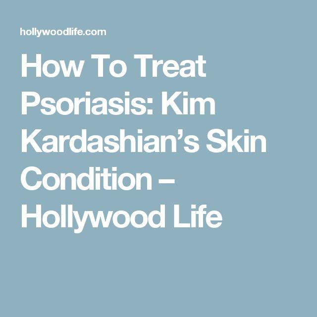 How To Treat Psoriasis: Kim Kardashian's Skin Condition – Hollywood Life
