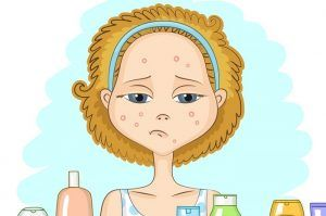 How to Get Rid of a Pimple Overnight: 7 Sure Fire Methods