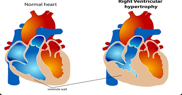 7 Strange And Surprising Signs Of Heart Disease You Need To Know About :http://www.healthyfoodsociety.com/7-strange-and-surprising-signs-of-heart-disease-you-need-to-know-about/