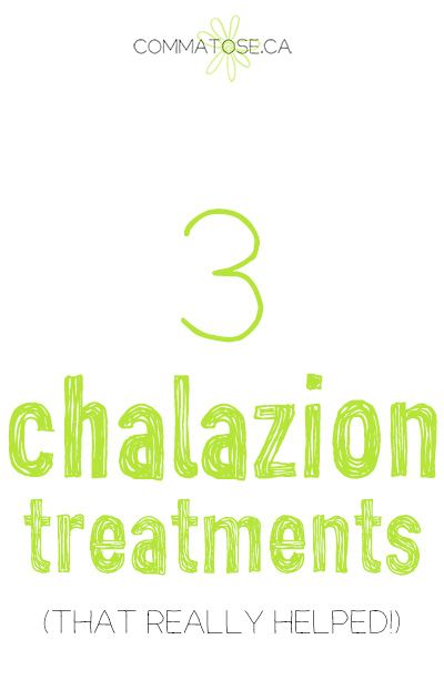 How we treated our son's chalazions when nothing else would work. After consistent treatment, his eyes look 95% better and will only continue to improve according to our opthalmologist.