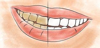 Zerdeçal ile Doğal Diş Beyazlatıcı Tarifi