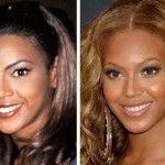 Beyonce Plastic Surgery Beyonce the next Michael Jackson