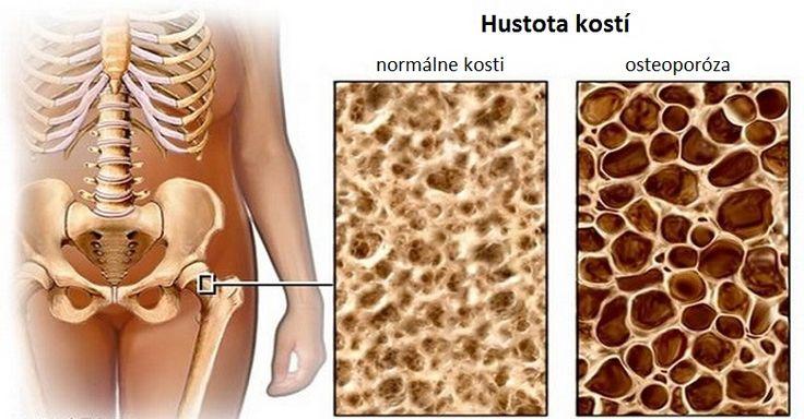 Osteoporóza spočiatku nebolí a často sa prejaví až keď je už neskoro. Niektoré potraviny jej však dokážu predchádzať a dokonca ju aj liečiť.
