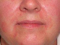 Seborrhoeic dermatitis  Flaky sore skin