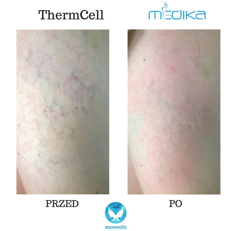 Before and after thermolysis treatment. Incredible effect right after the procedure. #ThermCell #Medika  ThermCell device made in Europe. www.maxmedik.pl