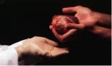 Euthanasie en orgaandonatie, primeur voor België