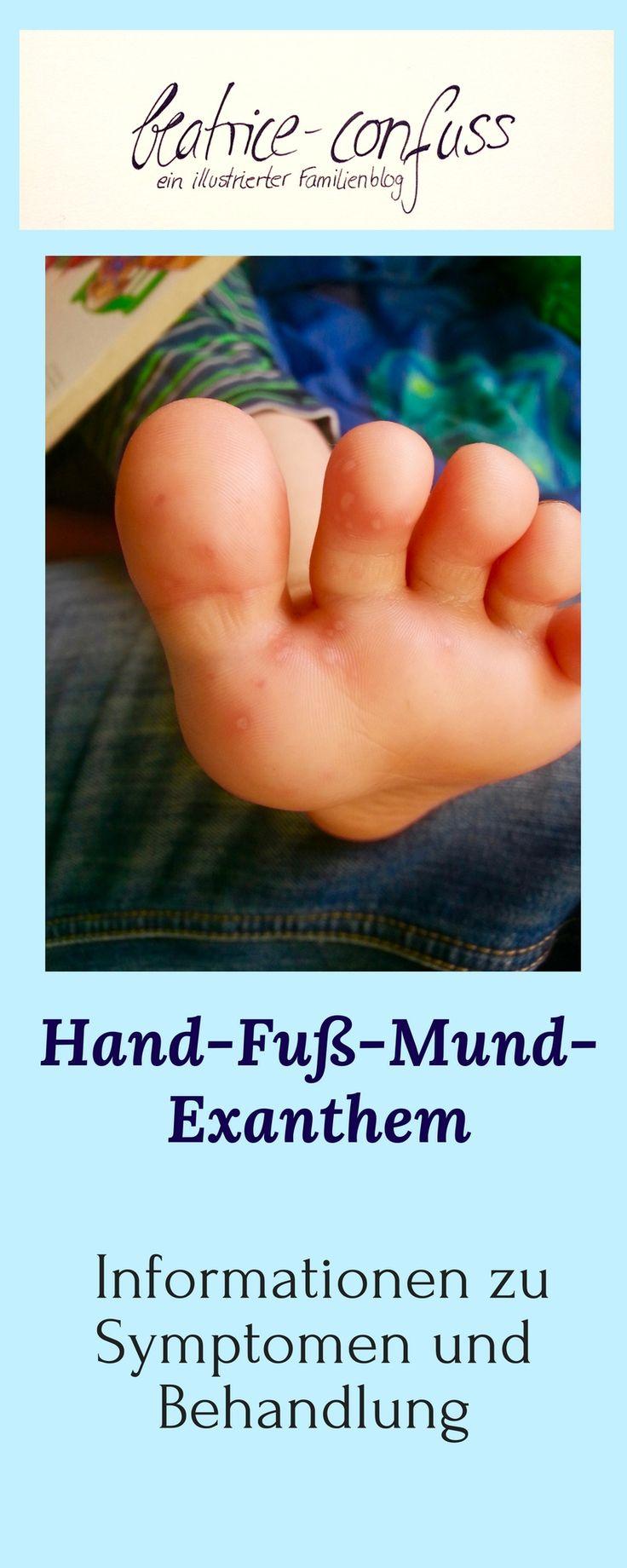 Hand-Fuß-Mund-Krankheit, Kinderkrankheit, Symptome