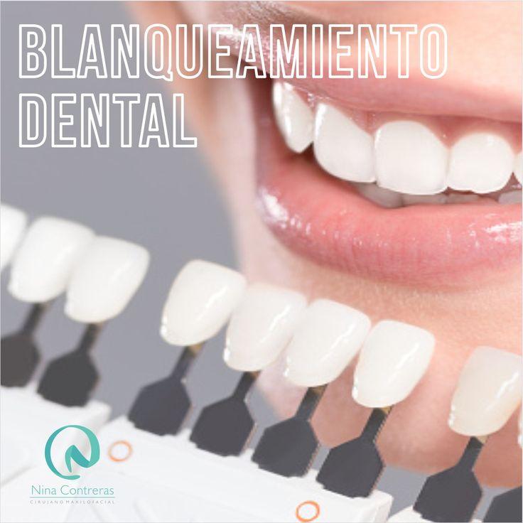 Especialistas en #blanqueamiento #dental  Agenda tu cita:  ☎️ 6571629 📲 300 8934528 http://ninacontrerascmf.com/location/ #implantesdentales #prótesisdentales #ortodoncia #cirugía #ortognática #odontologíaespecializada #ninacontreras